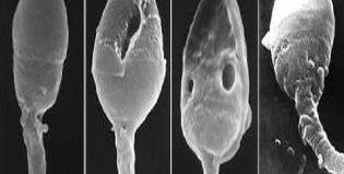 Когда сдают спермограмму, и как подготовится к анализу?