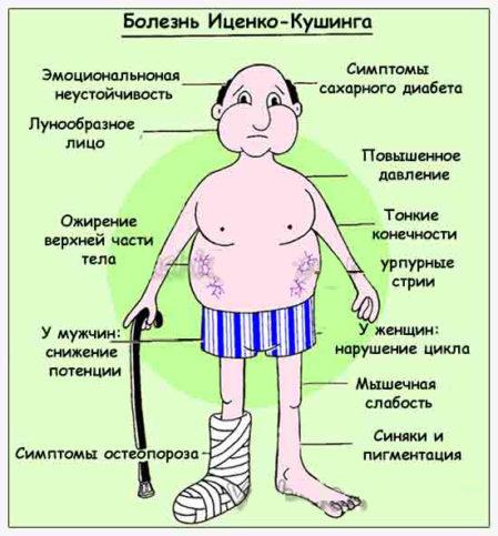 Причины и симптомы заболевания Иценко-Кушинга