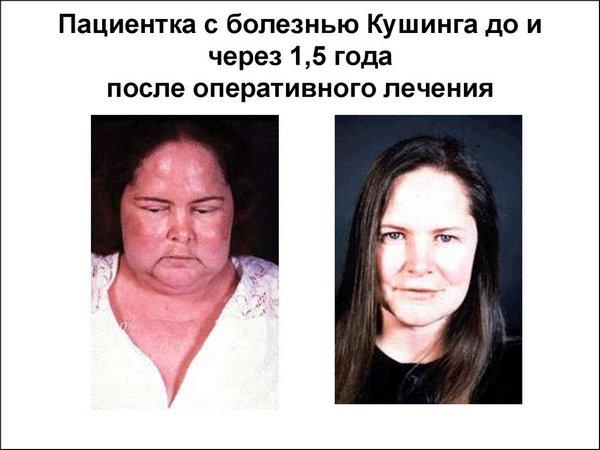 Синдром Иценко Кушинга: фото до и после
