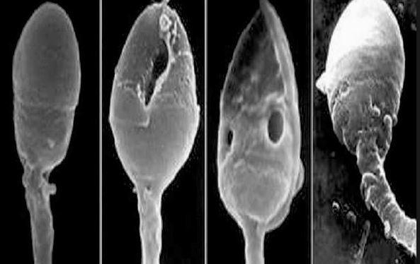 Причины тератозооспермии у мужчин и способы лечения заболевания