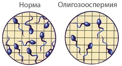 Диагноз олигозооспермия – что это такое?