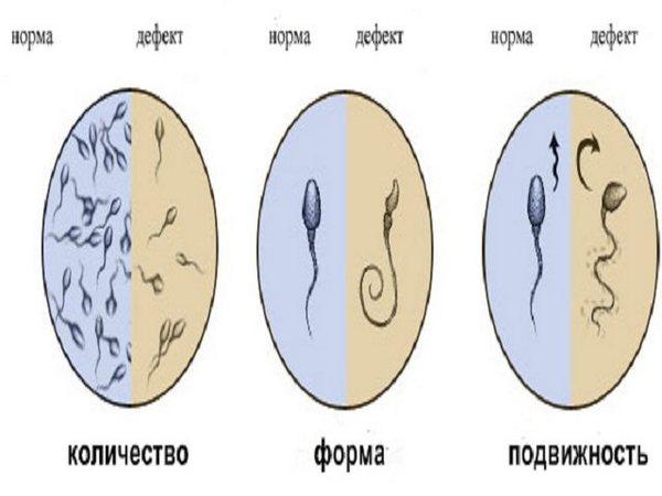 Что такое нормозооспермия умужчин?