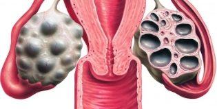Кисты в яичниках у женщин: как определить и методы лечения