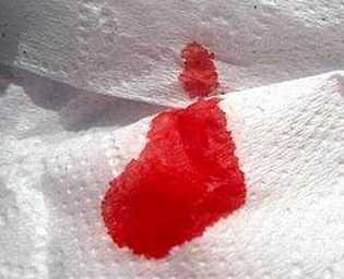 Признаки имплантационного кровотечения, и как не спутать его с месячными