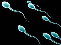 Азооспермия у мужчин - как лечить, народные методы, отзывы