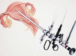 Показания к проведению гистерорезектоскопии, восстановление после процедуры, и влияние на будущее зачатие