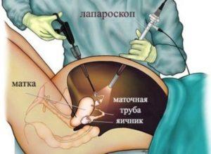 Лапароскопия: понятие и описание процедуры