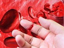 Гемофилия: что это за болезнь, какая вероятность создать семью и родить здорового ребенка?