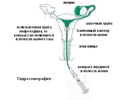 Эхогистеросальпингоскопия (ЭхоГС)— что это такое