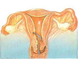 Выпадение внутриматочной спирали