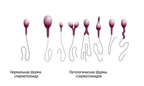 Олигоастенотератозооспермия: понятие заболевания