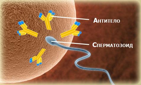Анализ на антиспермальные тела у женщин