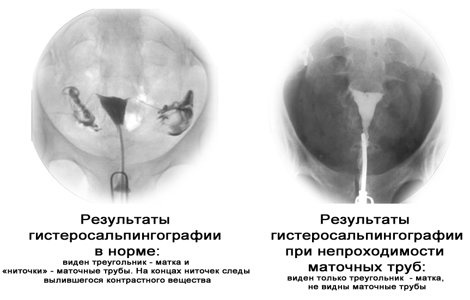 Как проводится Эхогистеросальпингоскопия