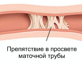 Непроходимость маточных труб: признаки, симптомы, ощущения