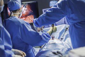 лапароскопия при непроходимости маточных труб