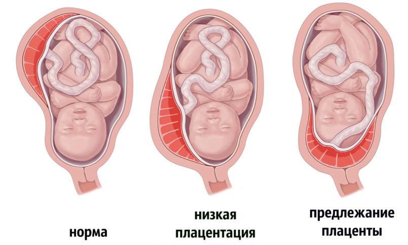Что значит низкая плацентация при беременности