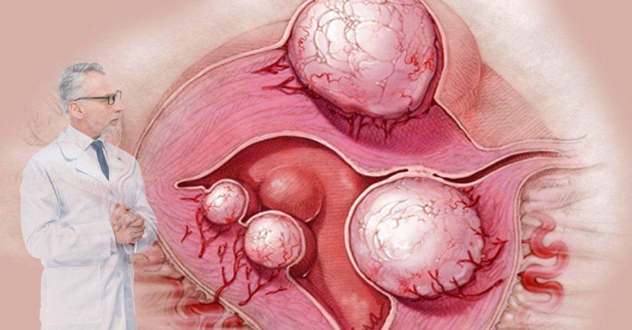 беременность с миомой матки