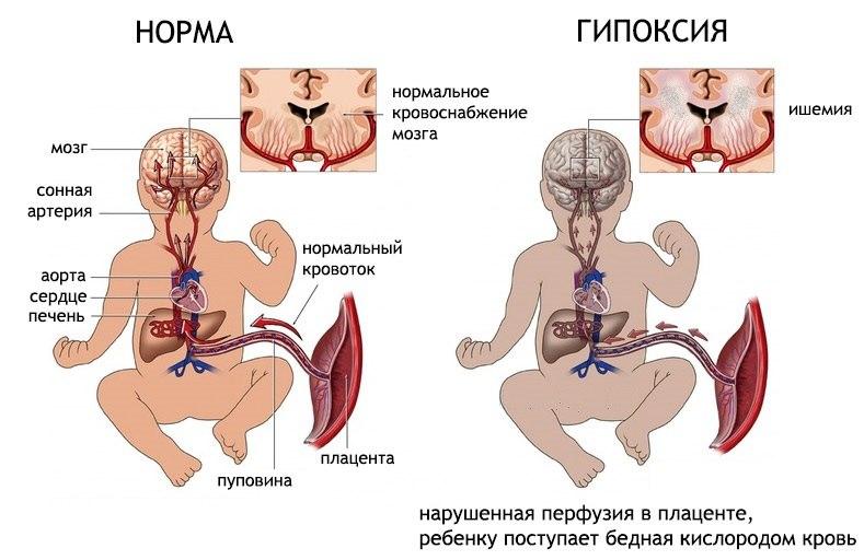 нехватка кислорода в головном мозге у ребенка