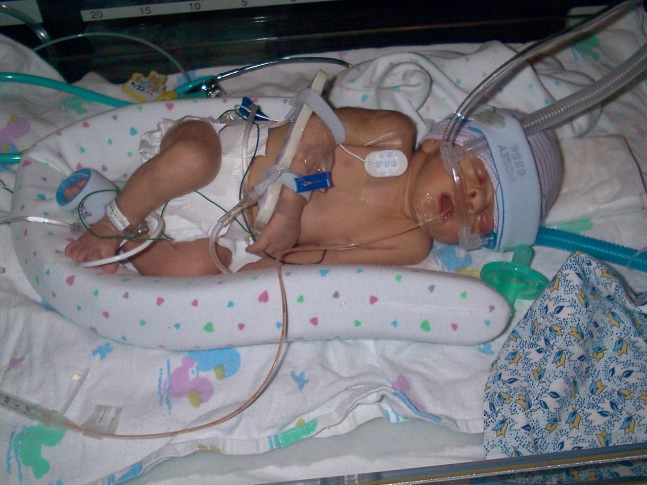 Как проявляется гипоксия плода и какие будут последствия для ребенка